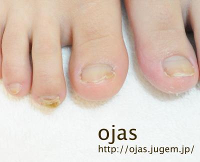 足の深爪矯正、長さ出しをする前の写真。足の折れた爪や二枚爪も綺麗にします。お洒落しながら爪を伸ばせます。京都市北区北大路北山ネイルサロンojas