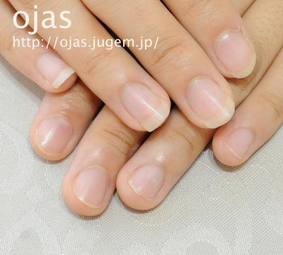左手が深爪なので、長さ出しで自然な長さに伸ばします。深爪矯正のことなら関西京都市北区北大路北山オージャスへ。