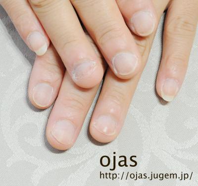 深爪矯正ビフォーアフター写真。深爪矯正開始後1ヶ月の自爪です。関西大阪滋賀奈良より沢山ご来店頂いてます。お爪のお悩みはネイルサロンojasまで