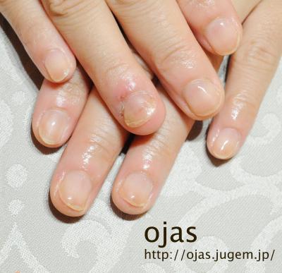 深爪矯正ビフォーアフター写真。深爪矯正から2ヶ月経過した自爪です。関西大阪滋賀奈良より沢山ご来店頂いてます。お爪のお悩みはネイルサロンojasまで