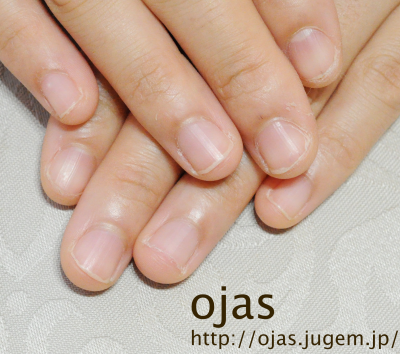 深爪矯正前の自爪写真です。深爪矯正のことなら関西京都市北区北大路北山オージャスへ。