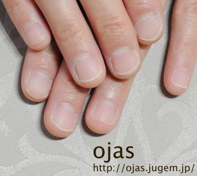 深爪矯正の長さ出し施術ビフォーアフター。ジェルで爪を人工的に作り伸ばします。自爪に優しいカルジェルなので安心。関西大阪滋賀奈良より沢山ご来店頂いてます。nailsalon ojas