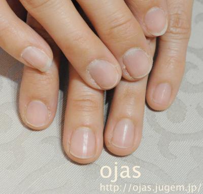 深爪矯正のビフォーアフター写真です。最初は短い爪ですが徐々にピンク部分が増えてきます。噛み爪やちぎる癖、短い爪を治したい方はネイルサロン京都ojasへ