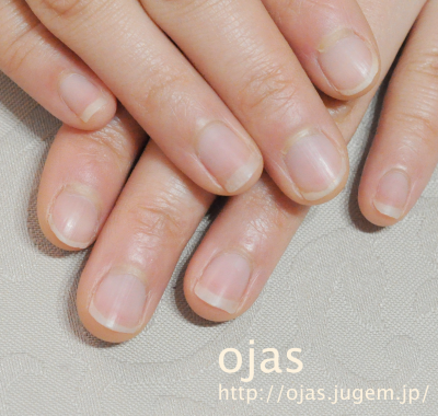 深爪矯正のビフォーアフター写真です。噛み爪、弱い爪、薄い爪、爪の折れ、亀裂修復で人気の京都ネイルサロンojas。京都市北区 北大路近く