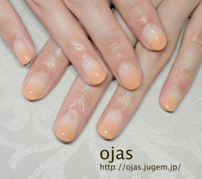 深爪矯正の長さ出し施術後の写真。人工的に長さを出してすっかり長く美しい爪に。爪でお悩みの方はご相談ください。関西大阪滋賀奈良より沢山ご来店頂いてます。