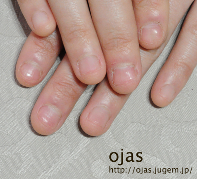 深爪矯正を開始時の自爪です。これからcalgelで自爪を保護し、伸ばしていきます。噛み爪や深爪、折れやすい爪、薄い爪でお悩みの方も京都で人気のネイルサロンojasへ。