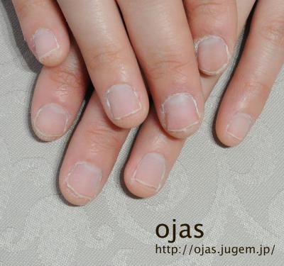 深爪矯正ビフォーアフター写真。深爪矯正開始からおよそ1ヶ月が経過した自爪です。関西大阪兵庫滋賀奈良、東京より沢山ご来店頂いてますネイルサロンojas。