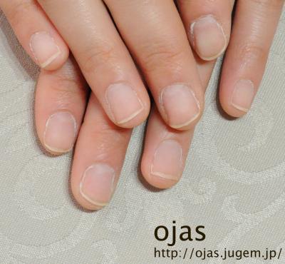深爪矯正ビフォーアフター写真。約2ヶ月が経過した自爪。カルジェルで自爪が保護されているので、見間違えるほどすくすくと伸びてきています。噛み爪や深爪、折れやすい爪、薄い爪でお悩みの方も京都で人気のネイルサロンojasへ。