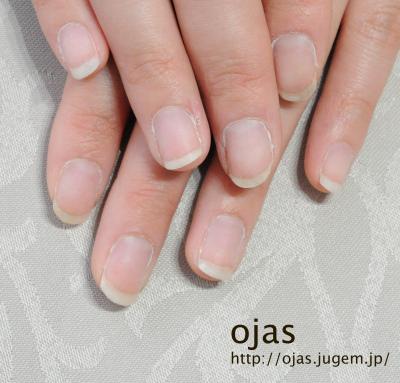 深爪矯正ビフォーアフター写真。開始から約3ヶ月経過した自爪です。噛み爪や深爪、折れやすい爪、薄い爪でお悩みの方も京都で人気のネイルサロンojasへ。