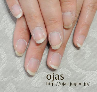 深爪矯正ビフォーアフター写真。約4ヶ月が経過した自爪です。もう深爪を卒業克服しました!関西大阪兵庫滋賀奈良、東京より沢山ご来店頂いてますネイルサロンojas。