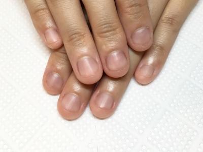 噛んでしまって短くなった爪。ピンクの部分が減っています。深爪矯正のことなら京都北大路の専門サロンojasへ。