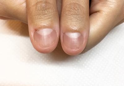 ストレスなどで噛んだり割いたりむしってしまう親指の爪。深爪を治したい方は京都北大路の専門サロンojasへ。