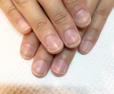 爪をむしってしまうクセがあっても大丈夫、深爪矯正で改善できます。専門ネイルサロンのojasへ