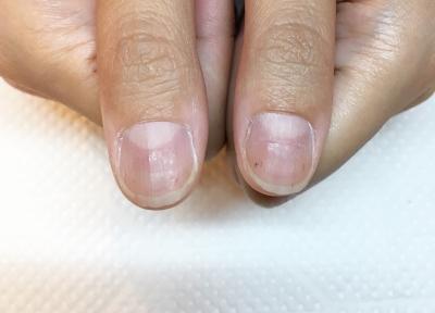 柔らかい爪や薄い爪をジェルで保護補強することで爪は伸びます。深爪矯正施術は一ヶ月でも伸びます。京都北大路ojas
