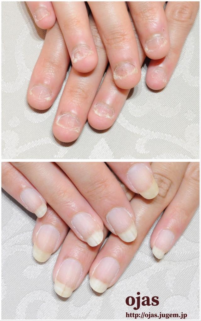 深爪矯正のビフォーアフター写真。短い爪もすぐに伸びてなおる。