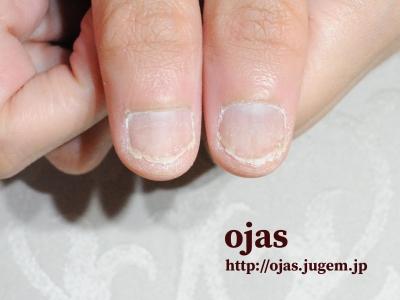 深爪矯正のBefore After写真です。親指が短い方も沢山いらっしゃいますが、すぐに改善します。