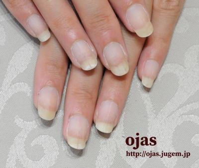 深爪噛み爪が3ヶ月であっという間に長く、なおりました