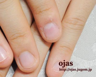 深爪用のネイル施術で治してから2ヶ月くらいで伸びてきた。