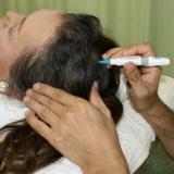 刺絡治療のイメージ