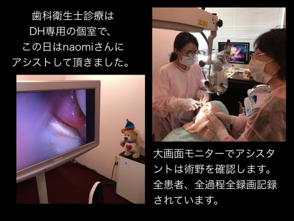 顕微鏡歯科衛生士