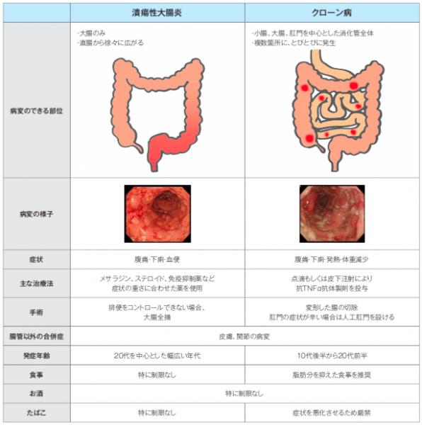 症状 炎 潰瘍 大腸 性