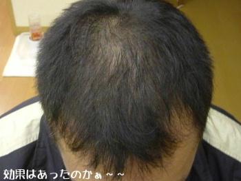 毛がのびただけかも〜〜