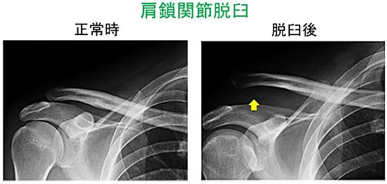 プロテクター07:肩鎖関節脱臼