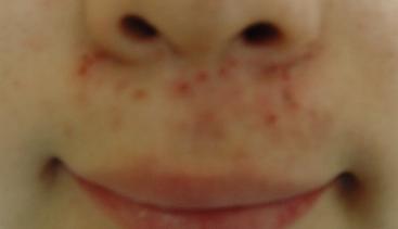 鼻 の 下 ニキビ