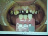 メタルコアと天然歯