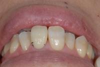 歯肉との関係