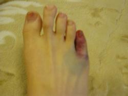 小指 痛い ぶつけ た の 足