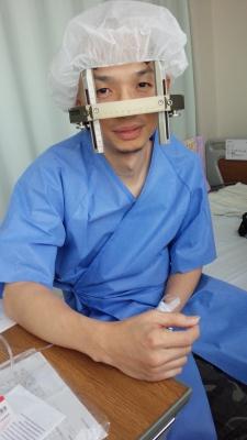 手術 ジストニア