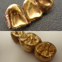 金製品 画像 金歯