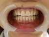 歯のマニキュア(ビフォー)