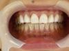 歯のマニキュア(アフター)