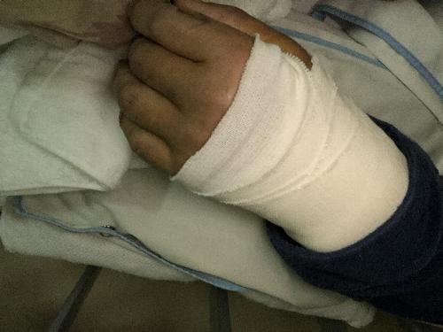 手術直後の左手