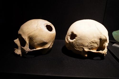 パラカス文化の2つの頭蓋骨