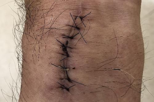 金属プレートを取り出した患部