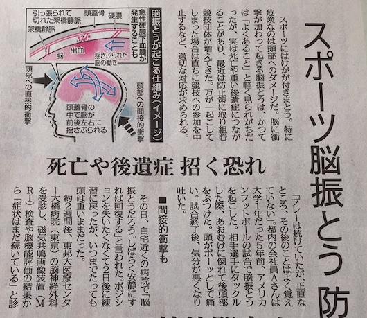 うるうカイロプラクティック、鹿児島県、霧島市、脳震とう、脳震盪、頭痛、