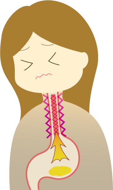 胃酸 逆流 食道炎 むかつき 早食い 噛まない 肩こり