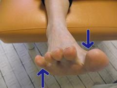外反母趾と内反足1