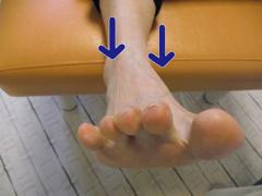外反母趾と内反足2