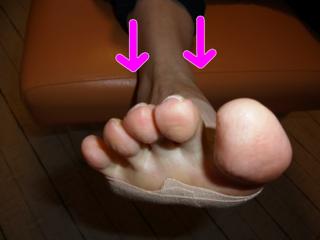 外反母趾と内反足4