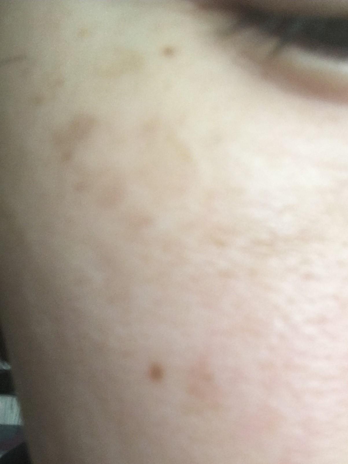 右頬の肝斑?(2016/4/11)