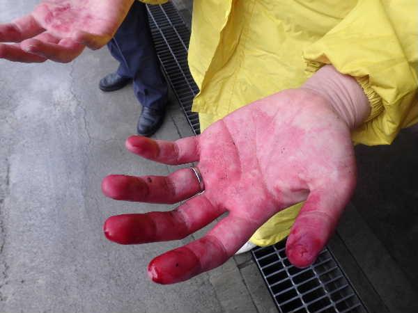 真っ赤な手