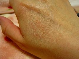 日光アレルギー画像