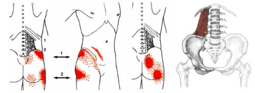 腰方形筋のトリガーポイント