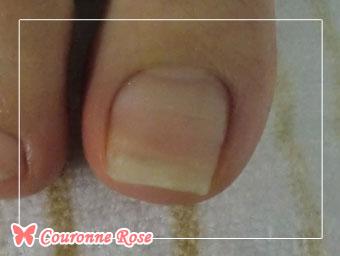 巻き爪矯正