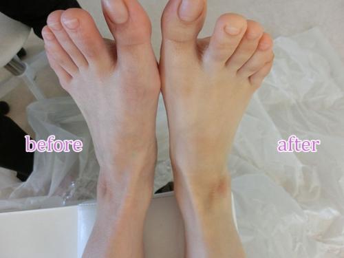 青森足の裏角質.jpg