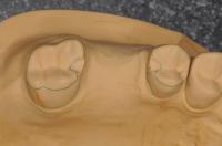 ヒューマンブリッジ臼歯部